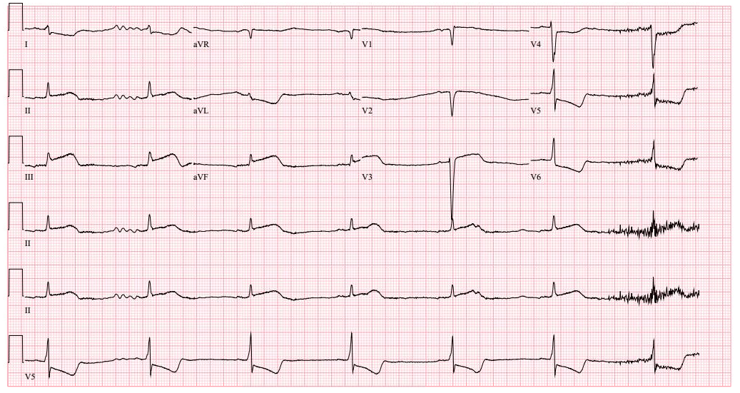 Electrocardiogram (ECG) utilizing time series data to assess heart health